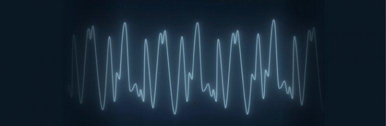 EEG slow waves